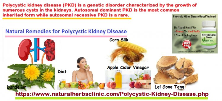 5 Natural Remedies For Polycystic Kidney Disease