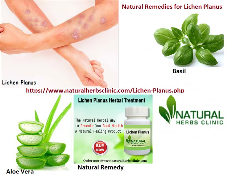 Make Use Of Natural Remedies For Lichen Planus Scars
