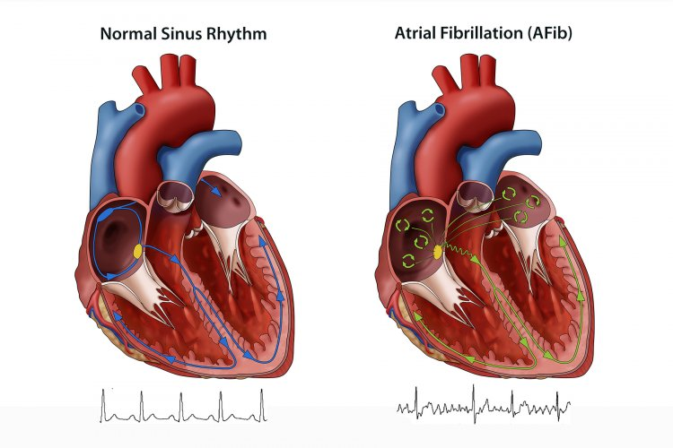 Best Natural Ways To Treat Atrial Fibrillation With Happy Lifestyle