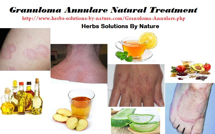 7 Effective Natural Treatments for Granuloma Annulare