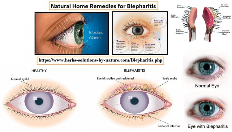 Natural Remedies for Blepharitis Treat with Natural Essential Oils