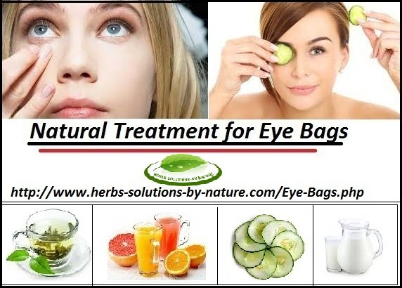 9 Natural Remedies for Eye Bags Best Cure for Puffy Eyes at Your Home