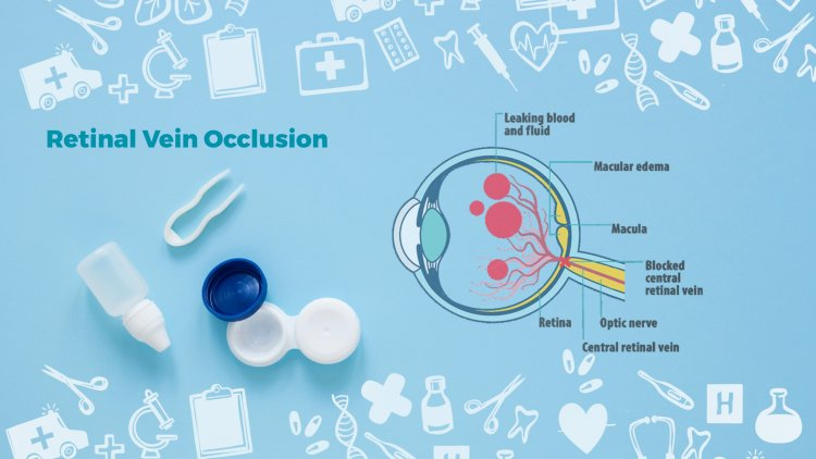 Natural Remedies for Retinal Vein Occlusion with Helpful Ingredients