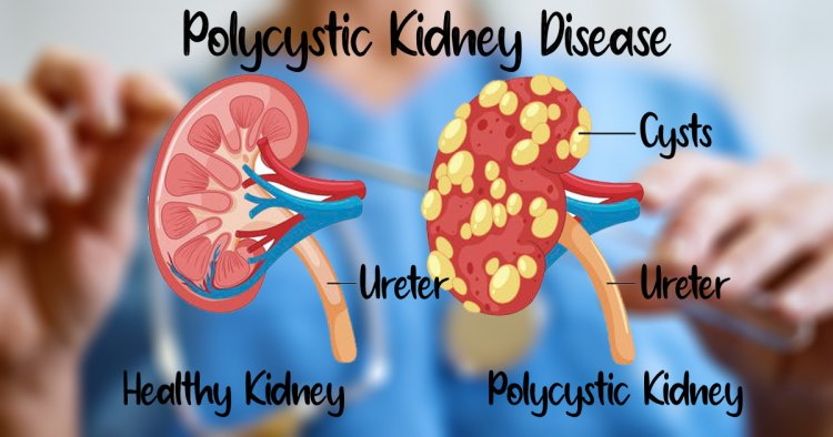 Natural Remedies for Polycystic Kidney Disease and Healthy Diet