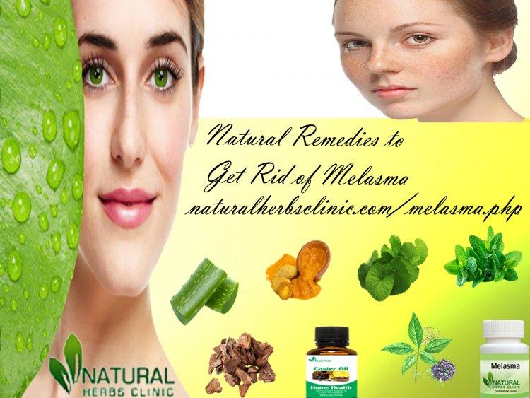 7 Natural Remedies to Get Rid of Melasma