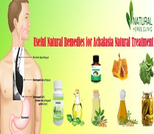 Useful Natural Remedies for Achalasia Natural Treatment